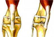 Patella Luxation
